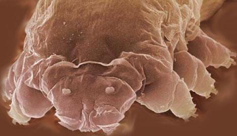Demodex-follicularum
